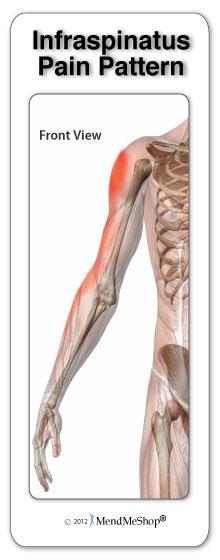 Pain pattern infraspinatus