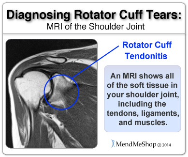 supraspinatus tendovaginitis shoulder mri