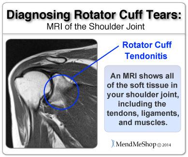 shoulder meniscus mri