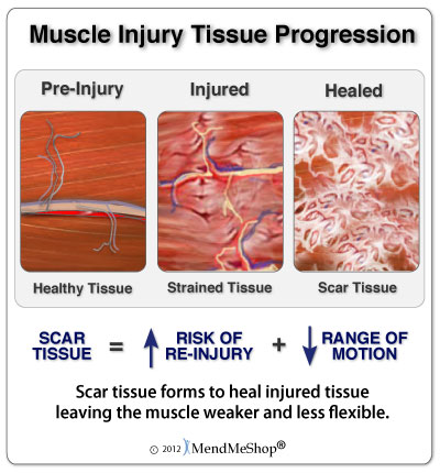 injured Muscle Tissue Scar Tissue