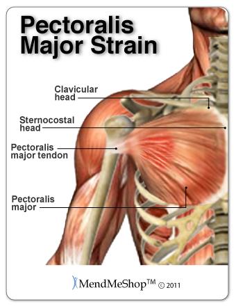 aidmyrotatorcuff | pectoralis major tendon and muscle rupture, Human Body