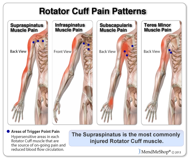 Even after initial pain is reduced with cold compression Shoulder Freezie Wrap treatments, trigger points in the rotator cuff muscles are still injured and require on-going treatment with BFST to increase blood flow circulation and release the hyperirritable trigger point.