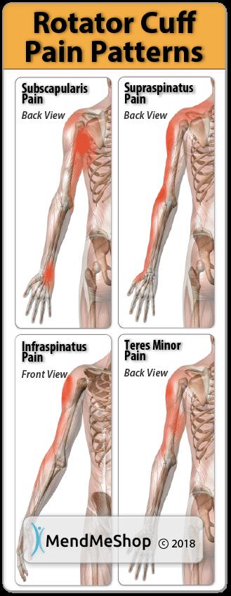Pain Pattern Rotator Cuff