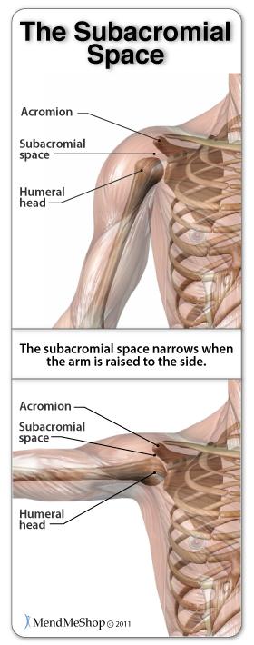 shoulder space narrows causes shoulder impingement