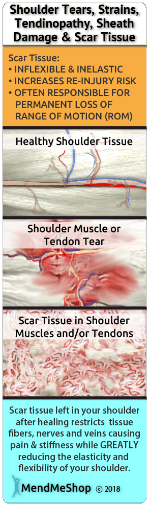 Rotator cuff surgery can heal with difficulties because of scar tissue