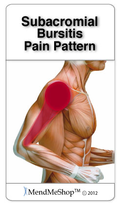 Pain pattern subacromial bursitis