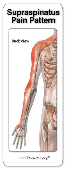 Pain pattern supraspinatus