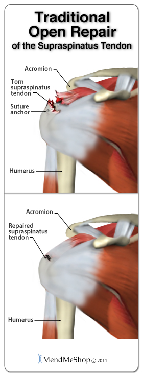 Traditional open repair surgery to repair the supraspinatus tendon of the rotator cuff.